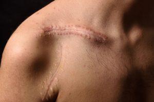 SEO scar